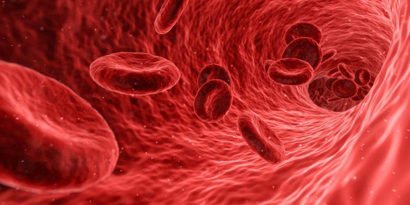 implantar-TAVI-arterias-enfermas