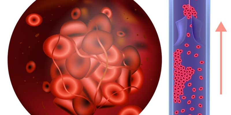 valvulas-mecanicas-anticoagulacion